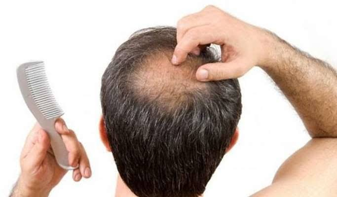 try some new ways to overcome from baldness