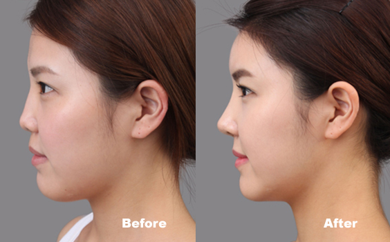 4 easy Exercise to get sharp & perfect nose | Khabarlazmi